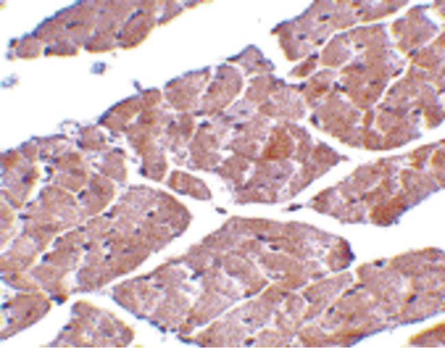 TRPC3 Antibody (PA5-20258) in Immunohistochemistry