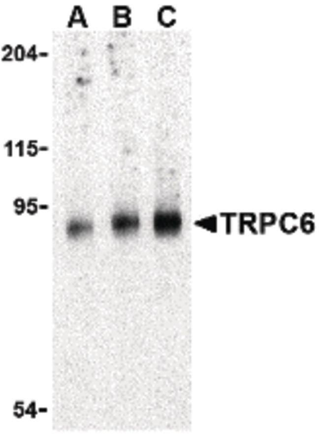 TRPC6 Antibody (PA5-20256) in Western Blot