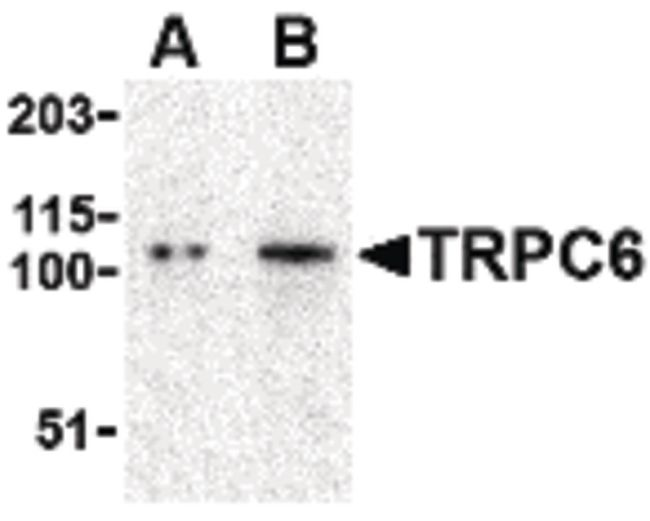 TRPC6 Antibody (PA5-20257) in Western Blot