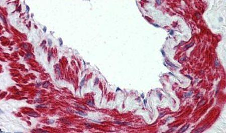 TRPM8 Antibody (PA5-33090)