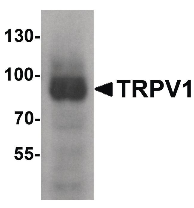 TRPV1 Antibody (PA5-34498) in Western Blot