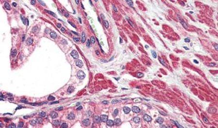 TRPV2 Antibody (PA5-34290) in Immunohistochemistry (Paraffin)