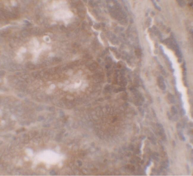 TSC22D3 Antibody (PA5-34506) in Immunohistochemistry