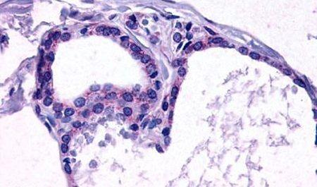 TSH Receptor Antibody (PA5-34293)