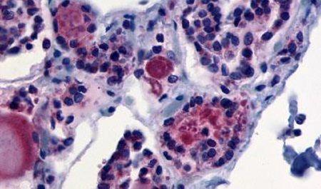 TSH Receptor Antibody (PA5-34295)