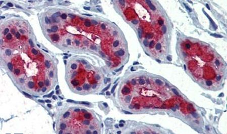 TSH Receptor Antibody (PA5-34296) in Immunohistochemistry (Paraffin)