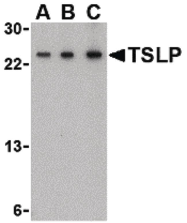 TSLP Antibody (PA5-20320) in Western Blot