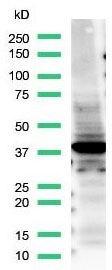 TTF1 Antibody (PA5-32633) in Western Blot