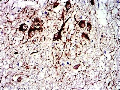 TUBA8 Antibody (MA5-17193) in Immunohistochemistry