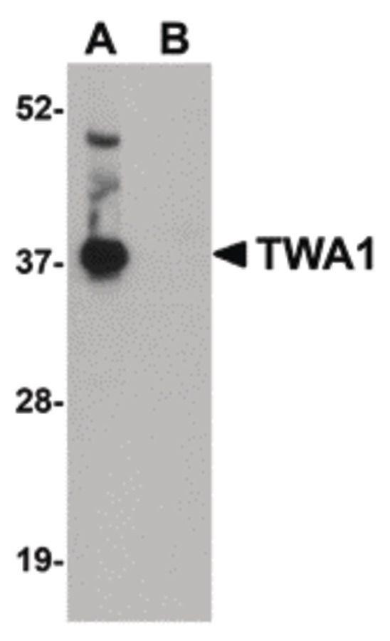 GID8 Antibody (PA5-20799) in Western Blot