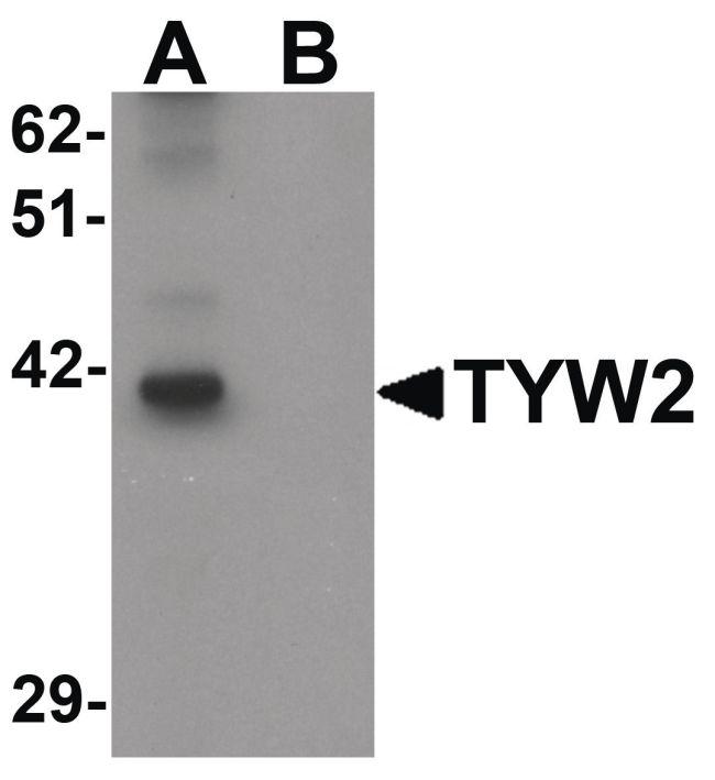TYW2 Antibody (PA5-21153) in Western Blot
