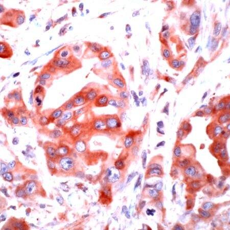 PAR1 Antibody (PA5-32612) in Immunohistochemistry