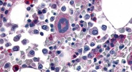 PAR1 Antibody (PA5-34263)