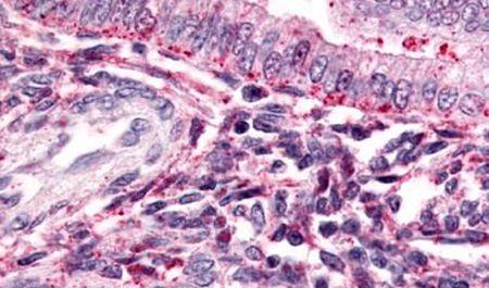 TBXA2R Antibody (PA5-34257) in Immunohistochemistry (Paraffin)