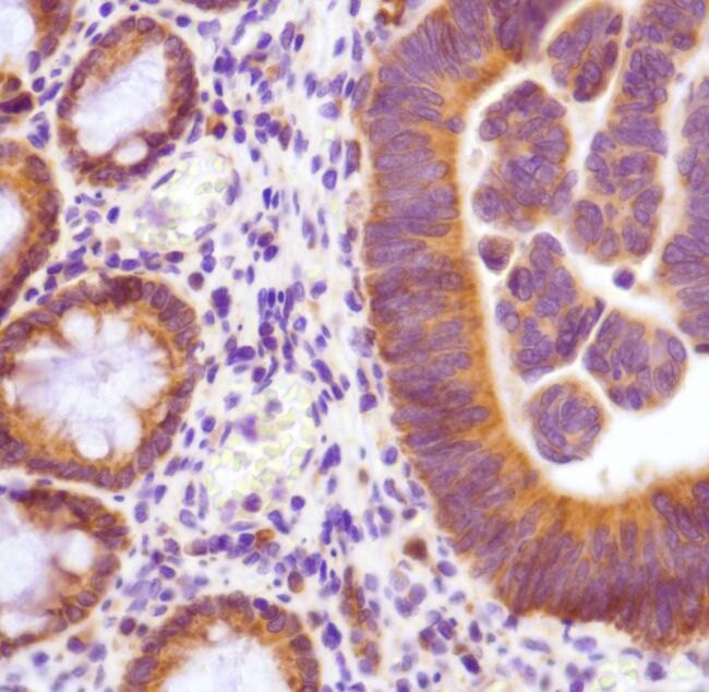 Thymidylate Synthase Antibody (MA5-16405)