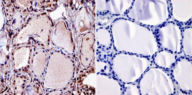 THRB Antibody (MA1-216) in Immunohistochemistry