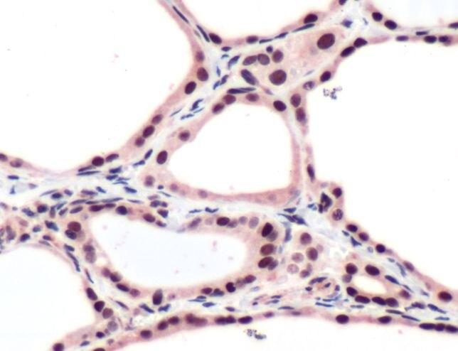 THRB Antibody (PA5-32616)