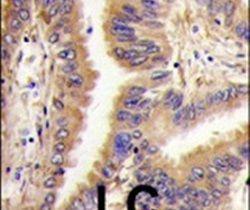 TGM2 Antibody (PA5-14966) in Immunohistochemistry
