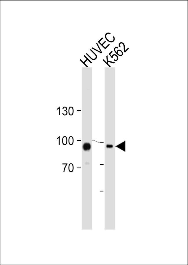 TGM2 Antibody (PA5-14966) in Western Blot