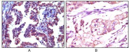TRIM5 alpha Antibody (MA5-15232) in Immunohistochemistry