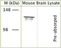 TRPA1 Antibody (OST00061W) in Western Blot