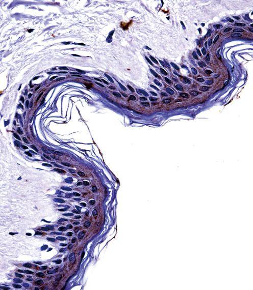 Tyrosinase Antibody (PA5-14232) in Immunohistochemistry