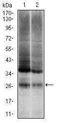Ubiquitin B Antibody (MA5-17196) in Western Blot