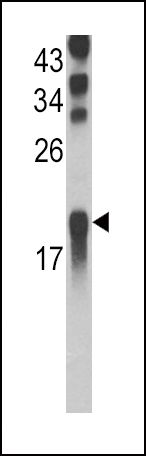 UBE2L3 Antibody (PA5-11966) in Western Blot