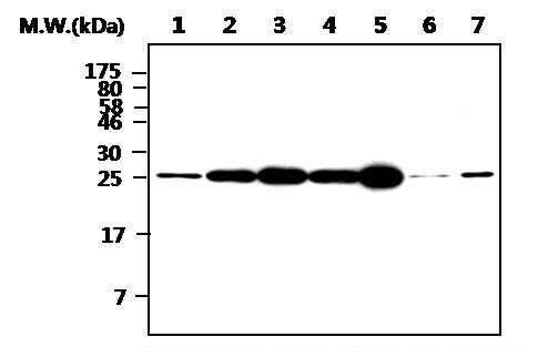 PGP9.5 Antibody (MA5-17235) in Western Blot