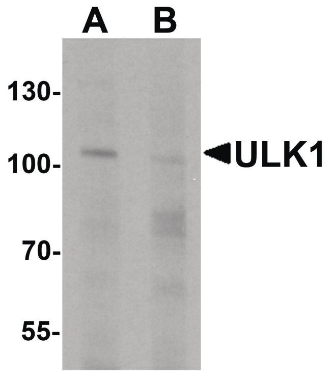 ULK1 Antibody (PA5-34542) in Western Blot