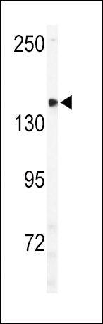 ULK2 Antibody (PA5-15382)