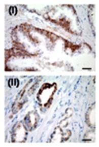 USP2 Antibody (PA5-11990) in Immunohistochemistry
