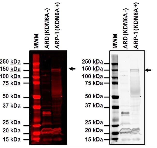 KDM6A Antibody (PA5-31828) in Western Blot