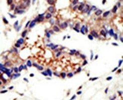 Ubiquilin 3 Antibody (PA5-12080) in Immunohistochemistry