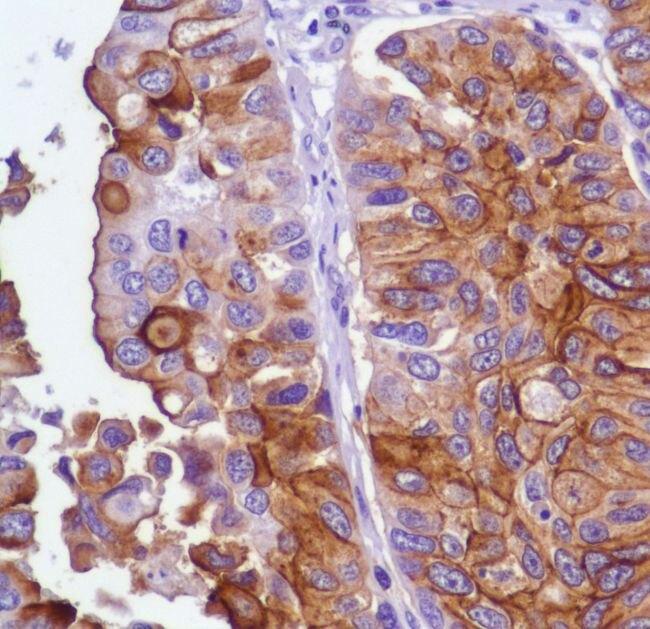 UPK3A Antibody (MA5-16407) in Immunohistochemistry