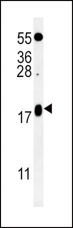 VAMP4 Antibody (PA5-25755) in Western Blot