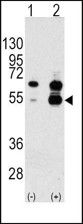 VEGF Antibody (PA5-13297) in Western Blot