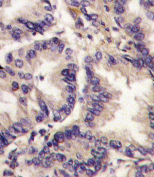 VEGFC Antibody (PA5-11908) in Immunohistochemistry