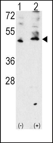 VEGFC Antibody (PA5-11908) in Western Blot