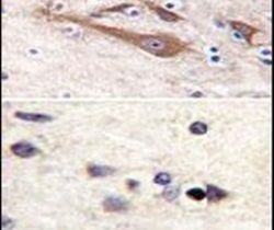 VSNL1 Antibody (PA5-11650) in Immunohistochemistry