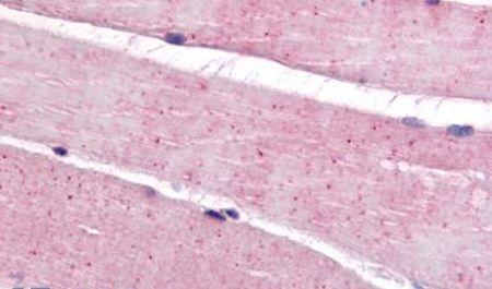 VMDL3 Antibody (PA5-33366) in Immunohistochemistry (Paraffin)