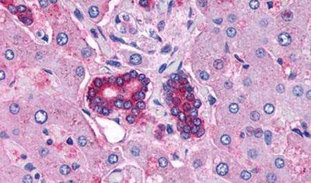VIPR2 Antibody (PA5-34305) in Immunohistochemistry (Paraffin)