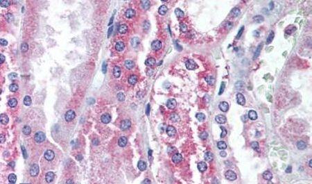 TRPV1 Antibody (PA5-34288)