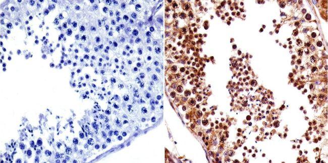 VRK1 Antibody (MA1-828) in Immunohistochemistry
