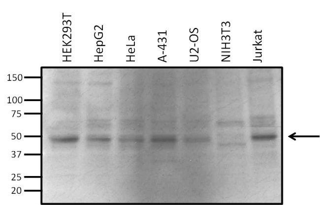 VRK1 Antibody (MA1-828) in Western Blot
