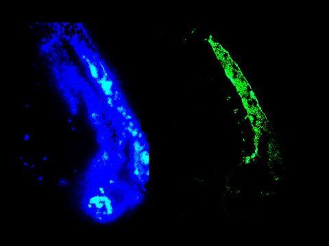 Vimentin Antibody (OMA1-06001) in Immunofluorescence