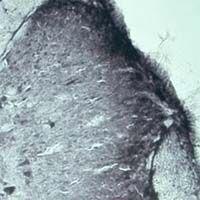 VPS45 Antibody (OSV00016W) in Immunohistochemistry