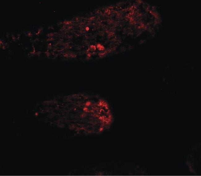 WAC Antibody (PA5-34536) in Immunofluorescence