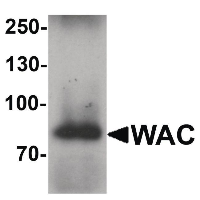 WAC Antibody (PA5-34536) in Western Blot