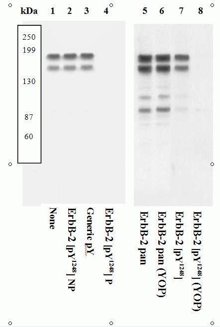 Phospho-ErbB2 (Tyr1248) Antibody (44904G) in Western Blot